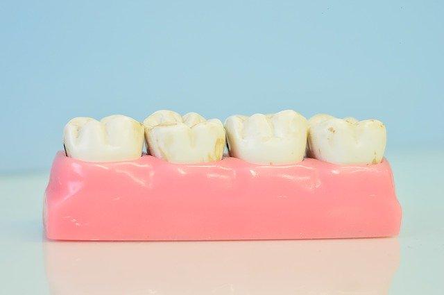 verkleurde tanden en kiezen